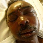 Col Christophe Hakizabera, en hôpital en France, après l'attentat manqué contre sa vie